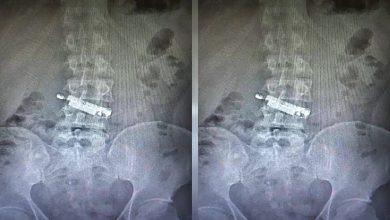 Carcerato con un cellulare nello stomaco per un mese