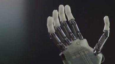 Primo impianto permanente di mano robotica bionica