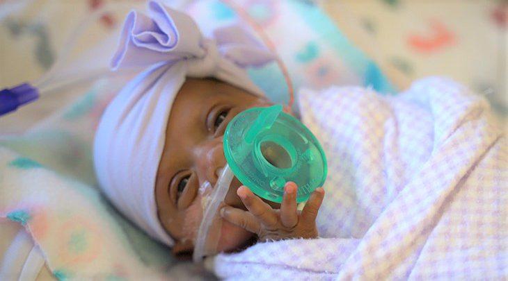 Saybie, la neonata più piccola del mondo